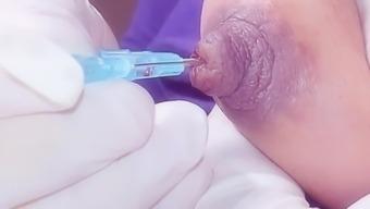 large nipple filling device use
